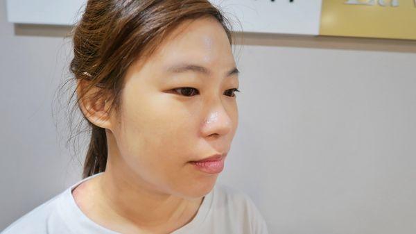 療程後B謝小徵-2-01